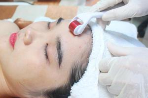 Ứng dụng lăn kim vi điểm trong điều trị da liễu