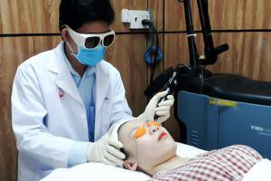 Điều trị rối loạn sắc tố bằng Laser Q-Switched