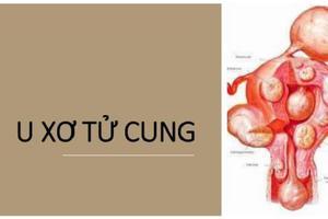 U xơ tử cung có nguy cơ chuyển thành ung thư không?