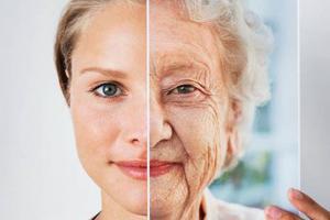 Những điều cần biết về hội chứng lão hóa sớm - Hội chứng lão hóa Werner