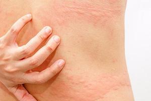 Mề đay mẩn ngứa - Nguyên nhân và cách điều trị hiệu quả