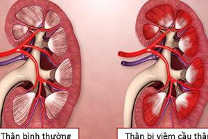 Viêm cầu thận và triệu chứng thường gặp