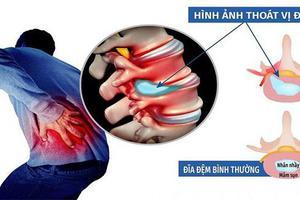 Khám và điều trị thoát vị đĩa đệm tại Bạc Liêu