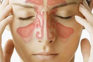 Viêm mũi dị ứng: Nguyên nhân và cách điều trị