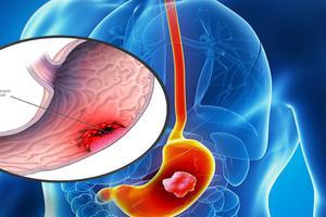 Đừng để ung thư dạ dày đe dọa cuộc sống bình yên của bạn