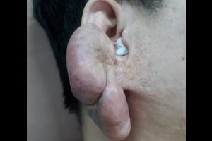 (2021) Cắt sẹo lồi vành tai tái phát to như nắm đấm