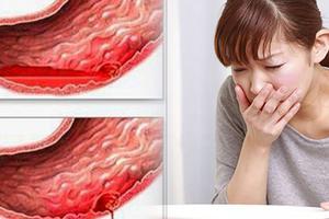 5 Dấu hiệu cảnh báo xuất huyết dạ dày