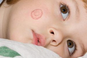 Bệnh hắc lào là gì? Nguyên nhân và triệu chứng?