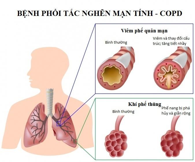 Bệnh phổi tắc nghẽn mạn tính: 16-80% gây tử vong