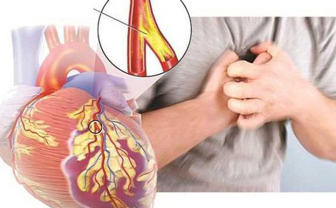 Bệnh tim mạch và mối đe dọa từ Covid-19